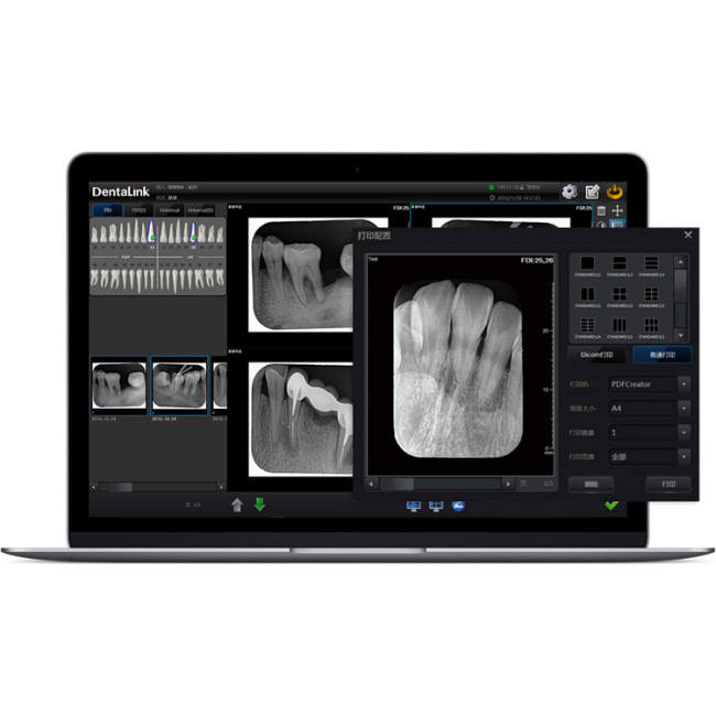 Digitized Intraoral Image Plate Dental Scanner