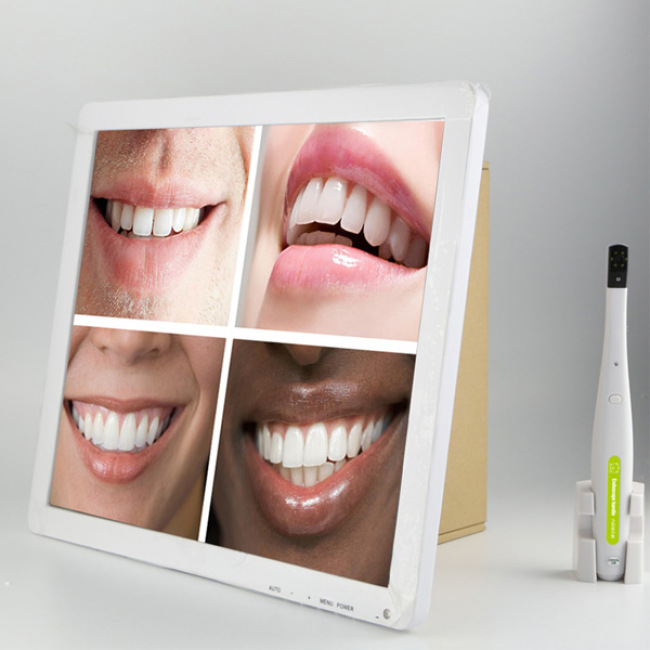 New Arrival 17inch Monitor LCD Intraoral Camera for Sale