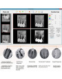 China Dental X-ray Sensor USB Handy Digital System