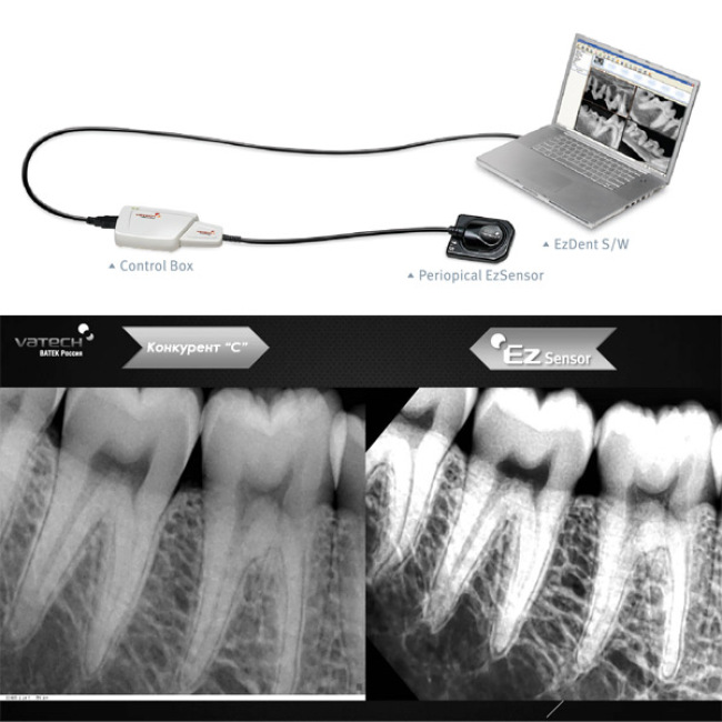 Dental Rvg Sensor Vatech Intra-oral Imaging Systems